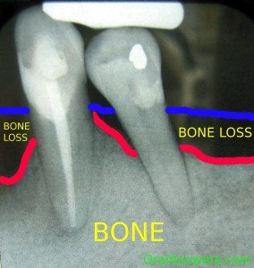 Periodontal bone loss, dentist in Franklin, TN, family and cosmetic dentist office, dentists for teeth whitening, zoom! in-office whitening.