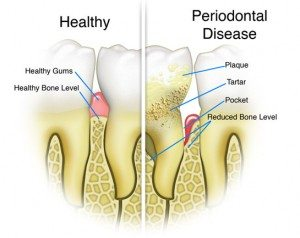 periodontal disease, dentist in Franklin, TN can help, best dentist for family and cosmetic dentistry, dentist office for teeth whitening zoom! in-office whitening.